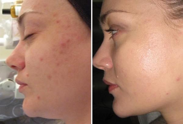 Фото до и после курса процедур фруктового (винного) пилинга