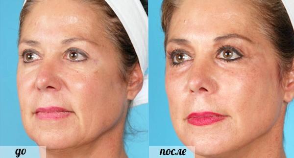 Фото до и после введения золотых нитей под кожу лица №1