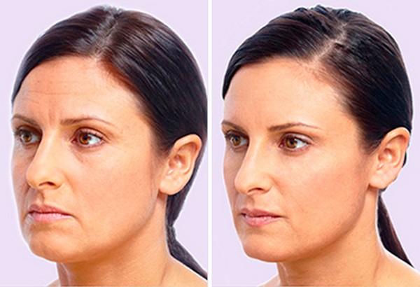 Фото до и после процедуры софтлифтинга №3
