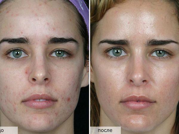 Фото до и после мануальной чистки лица №1