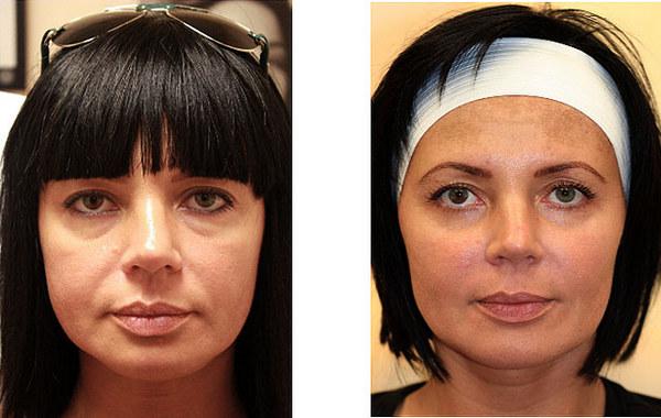 Фото до и после контурной пластики филлерами №1