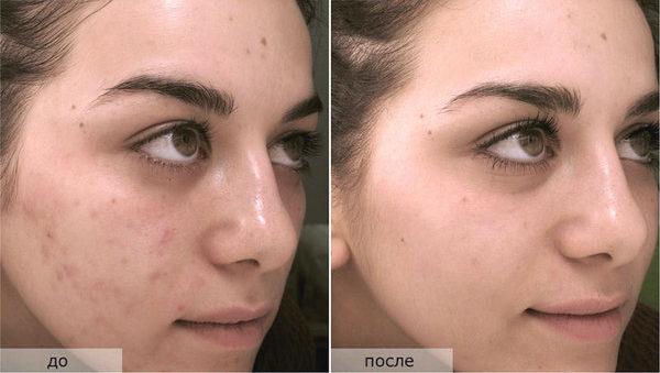 Фото до и после химического поверхностного пилинга №1