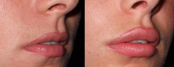 Фото до и после контурной пластики губ №3