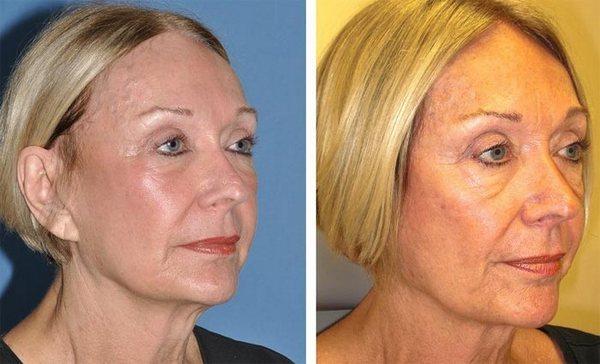 Фото до и после коррекции овала лица с помощью масок