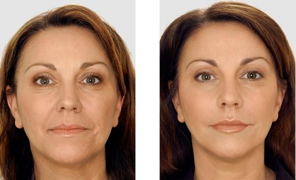 Фото до и после курса процедур с использованием препарата «Рестилайн» (Restylane) №1