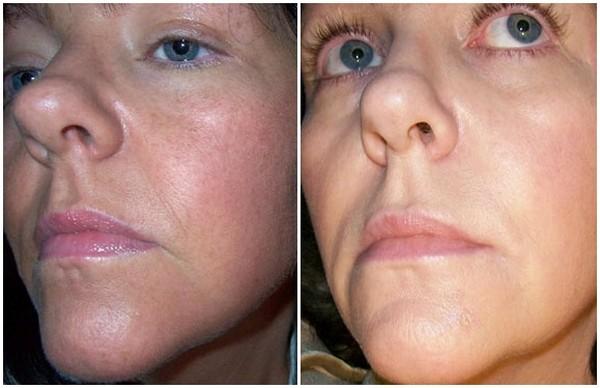 Фото до и после курса процедур ТСА-пилинга №1