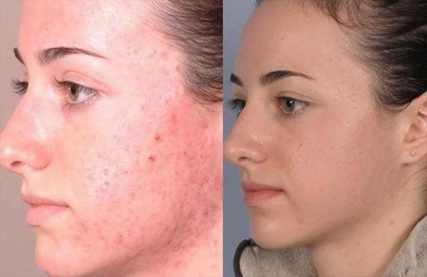 Фото до и после курса процедур салицилового пилинга №1
