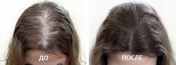 Фото до и после курса процедур мезотерапии для волос №1