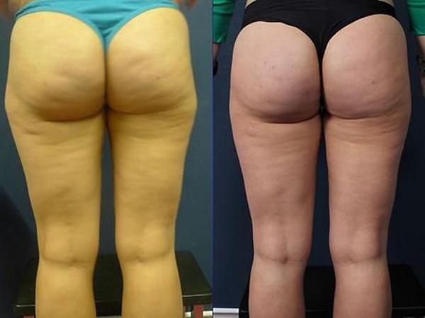 Фото до и после курса инъекционного липолиза №1