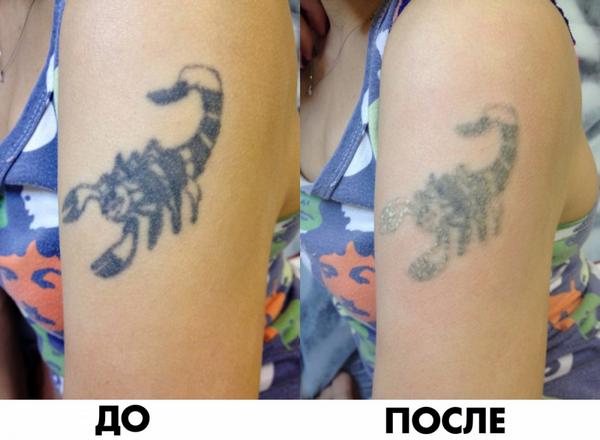 Фото до и после курса процедур по удалению татуировки лазером №1