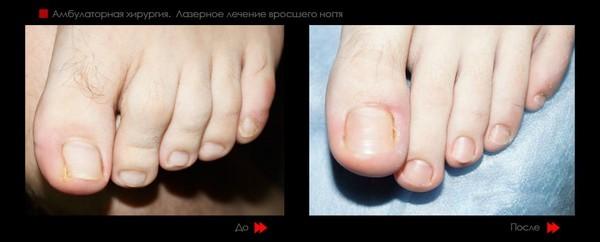 Фото до и после лазерного лечения вросшего ногтя №1