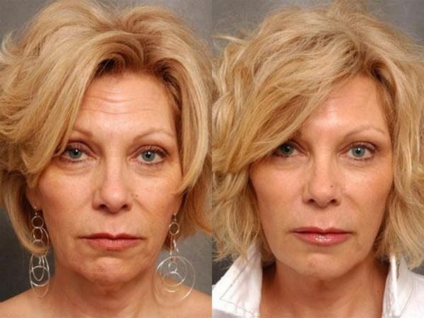 Фото до и после инъекций «Ксеомина» №2