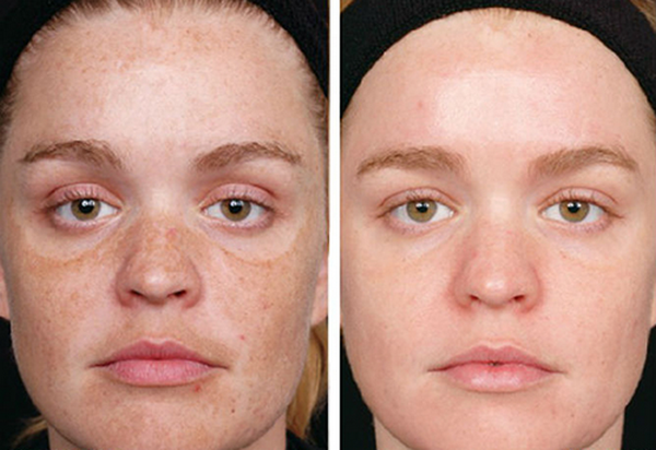 Фото до и после курса процедур энзимного пилинга №2