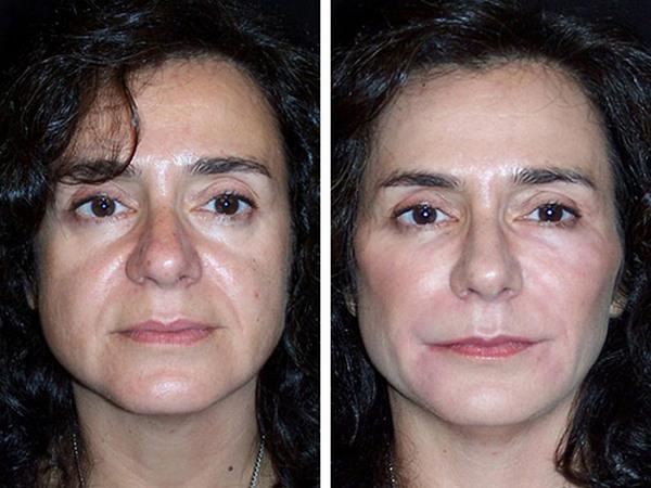 Фото до и после использования средства «Радиесс» №3