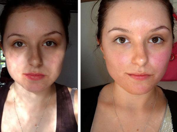 Фото до и после курса процедур кораллового пилинга №2
