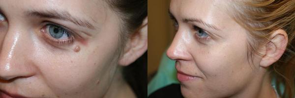 Фото до и после лазерного удаления бородавки №2