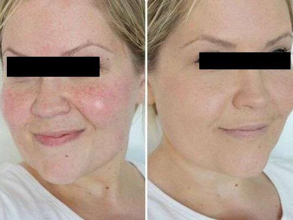 Фото до и после курса процедур ферулового пилинга №2