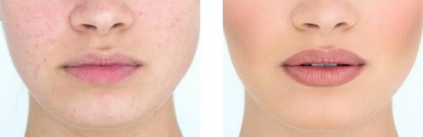 Фото до и после микроблейдинга губ №2