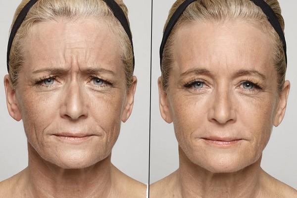 Фото до и после инъекции «Диспорта» №2