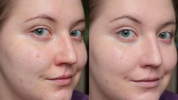 Фото до и после курса процедур газожидкостного пилинга №2