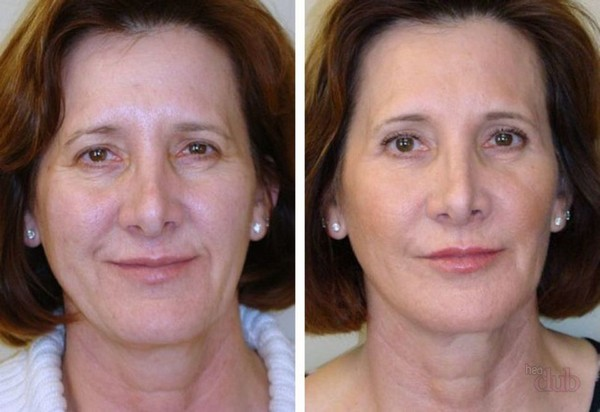 Фото до и после биоармирования лица №2