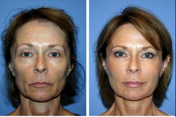 Фото до и после курса процедур биорепарации №2