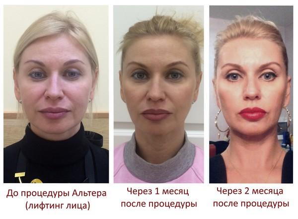 Фото до и после процедуры SMAS-лифтинга на аппарате Ulthera System №3