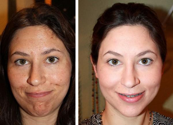 Фото до и после курса процедур ультразвукового пилинга лица №2