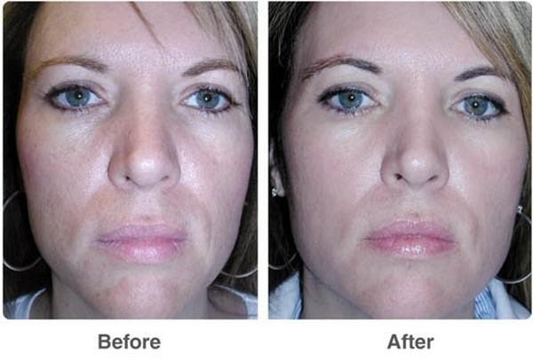 Фото до и после курса процедур фруктового (лимонного) пилинга