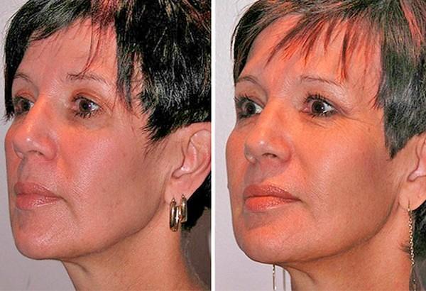 Фото до и после процедуры софтлифтинга №2