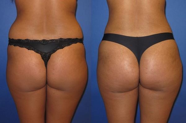 Фото до и после липофилинга №2