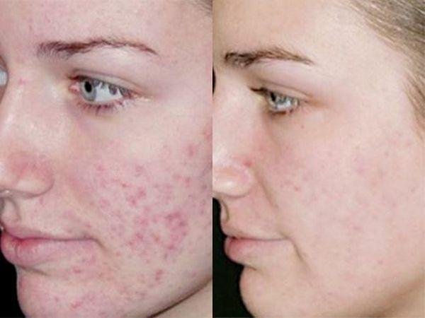 Фото до и после мануальной чистки лица №2