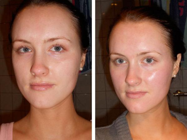Фото до и после химического поверхностного пилинга №2