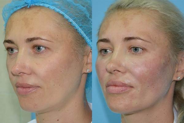 Фото до и после коррекции овала лица с помощью имплантатов