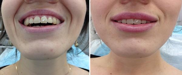 Фото до и после контурной пластики губ №2
