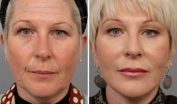 Фото до и после курса процедур инъекционной мезотерапии №2