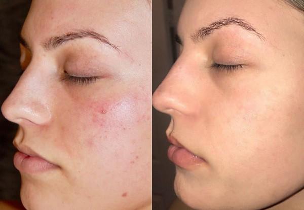 Фото до и после курса процедур салицилового пилинга №2