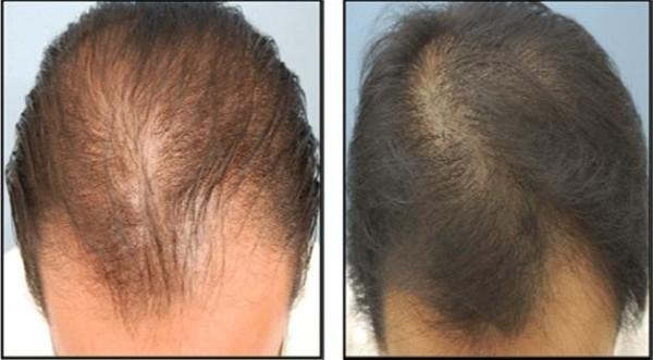 Фото до и после курса процедур мезотерапии для волос №2