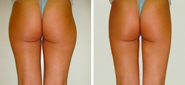 Фото до и после курса инъекционного липолиза №2