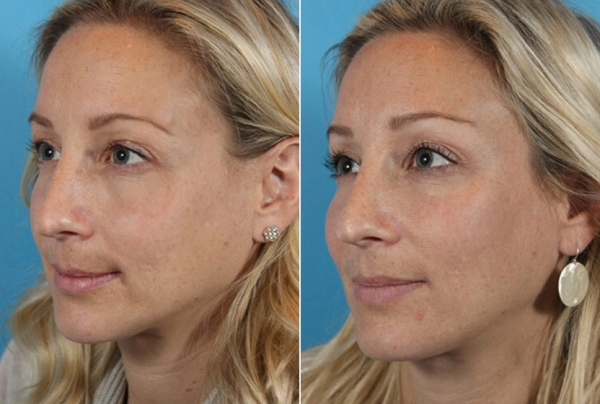 Фото до и после использования средства «Радиесс» №1