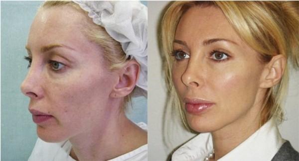 Фото до и после введения нитей Аптос №3