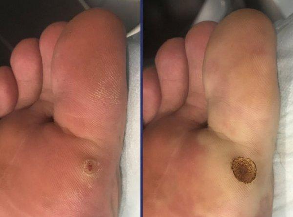 Фото до и после лазерного удаления бородавки №3