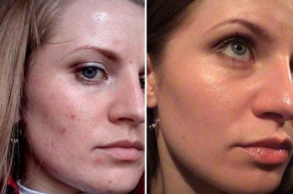 Фото до и после курса процедур ферулового пилинга №3