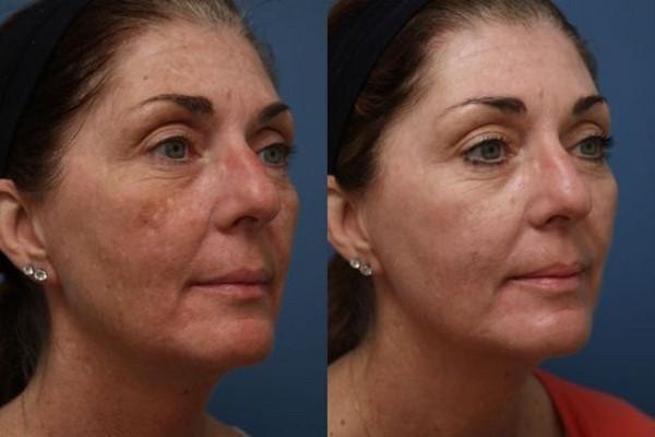 Фото до и после курса процедур энзимного пилинга №3