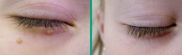 Фото до и после лазерного удаления папиллом №3