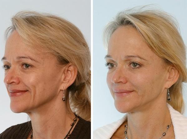 Фото до и после инъекции «Диспорта» №3