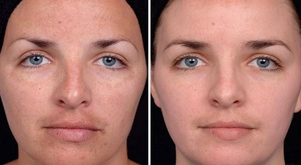 Фото до и после курса процедур газожидкостного пилинга №3