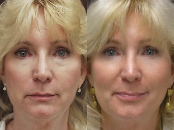 Фото до и после биоармирования лица №3