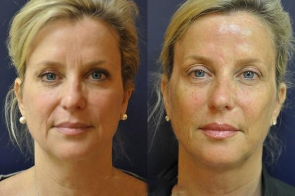 Фото до и после процедуры SMAS-лифтинга на аппарате Ulthera System №1