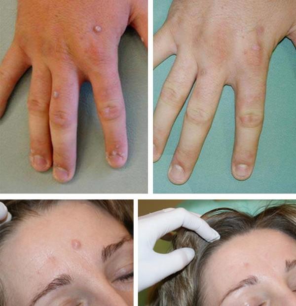 Фото до и после удаления бородавки жидким азотом №3